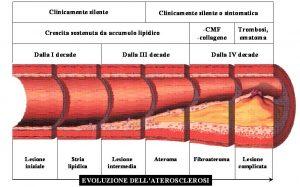 Arteriopatia Napoli